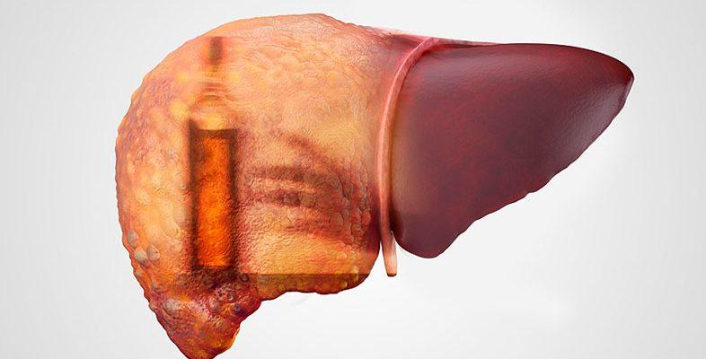 Алкогольный гепатит диета